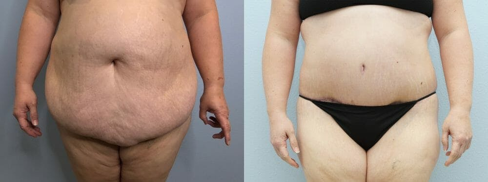 Tummy Tuck Gallery - Patient 47253980 - Image 1