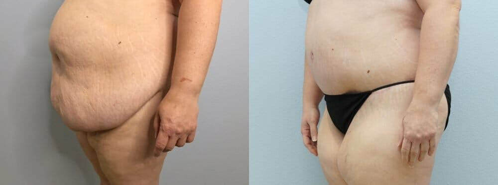 Tummy Tuck Gallery - Patient 47253980 - Image 2