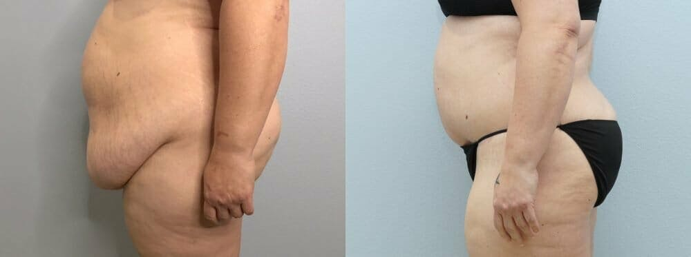 Tummy Tuck Gallery - Patient 47253980 - Image 3