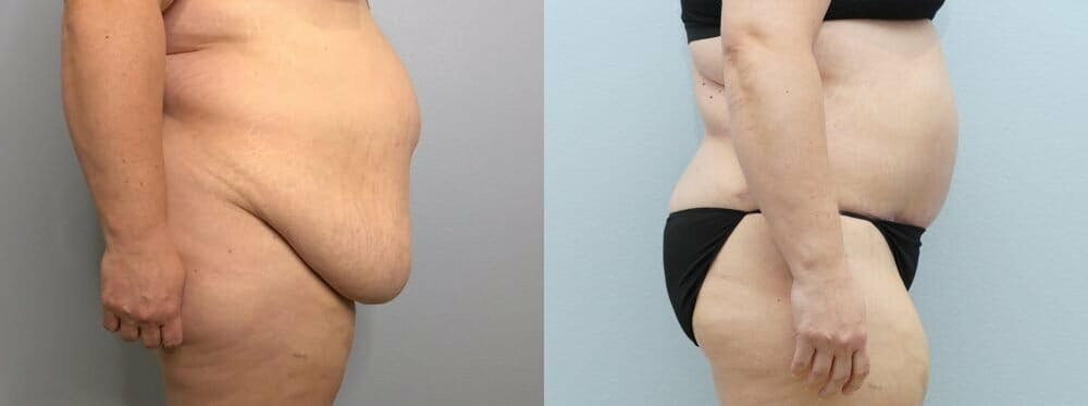 Tummy Tuck Gallery - Patient 47253980 - Image 5