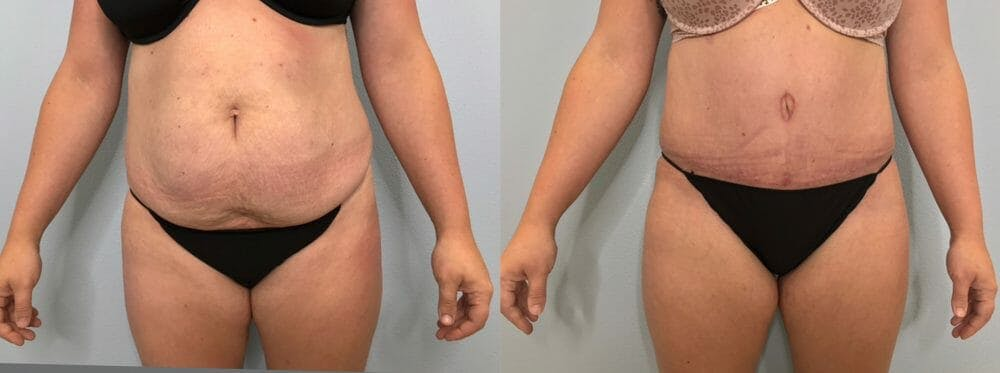 Tummy Tuck Gallery - Patient 47253984 - Image 1