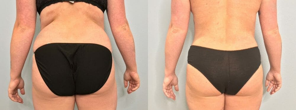 Tummy Tuck Gallery - Patient 47253984 - Image 2