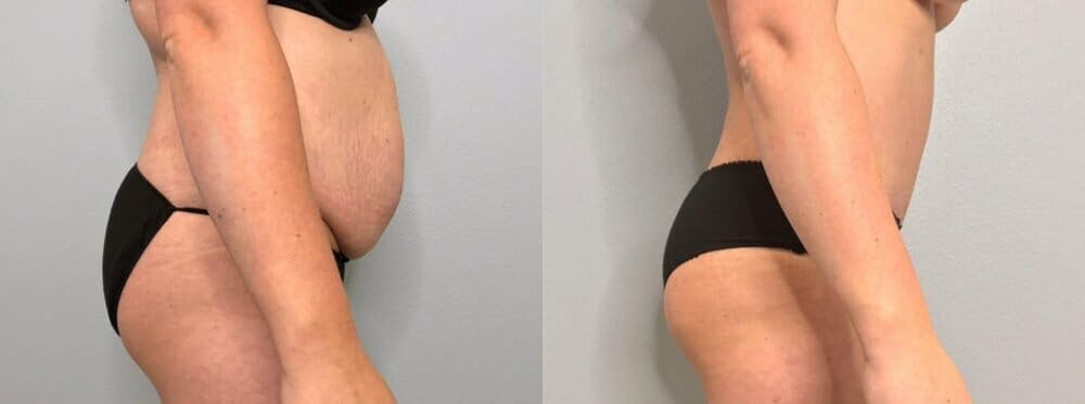 Tummy Tuck Gallery - Patient 47253984 - Image 4