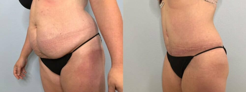 Tummy Tuck Gallery - Patient 47253984 - Image 5
