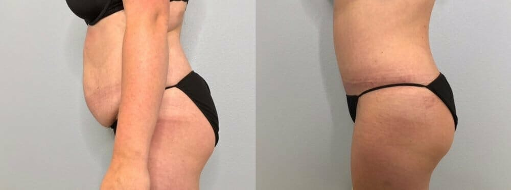 Tummy Tuck Gallery - Patient 47253984 - Image 6