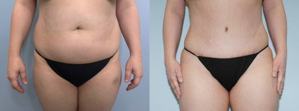 Tummy Tuck Gallery - Patient 47253990 - Image 1