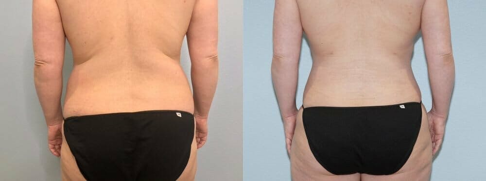 Tummy Tuck Gallery - Patient 47253990 - Image 2