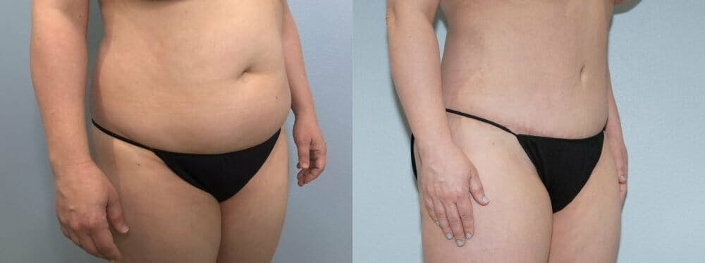 Tummy Tuck Gallery - Patient 47253990 - Image 3