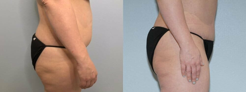 Tummy Tuck Gallery - Patient 47253990 - Image 4