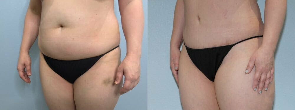 Tummy Tuck Gallery - Patient 47253990 - Image 5