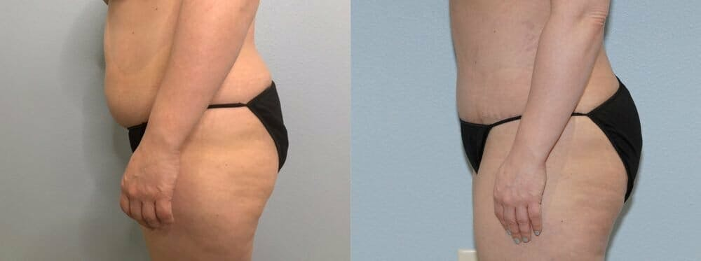 Tummy Tuck Gallery - Patient 47253990 - Image 6