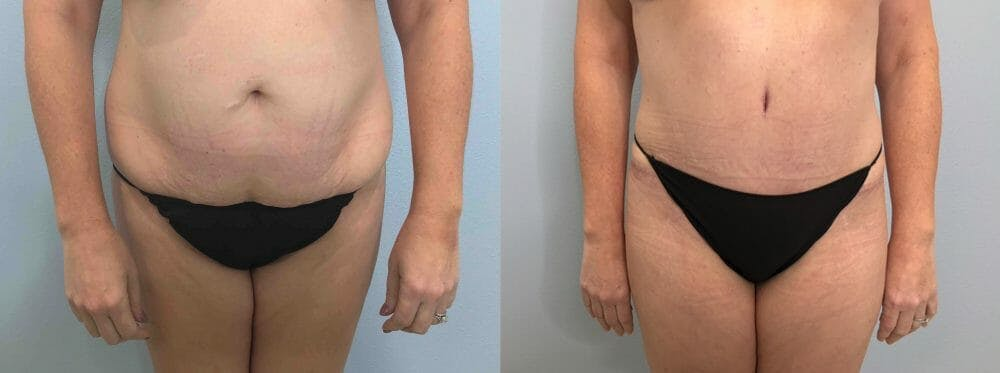 Tummy Tuck Gallery - Patient 47254000 - Image 1