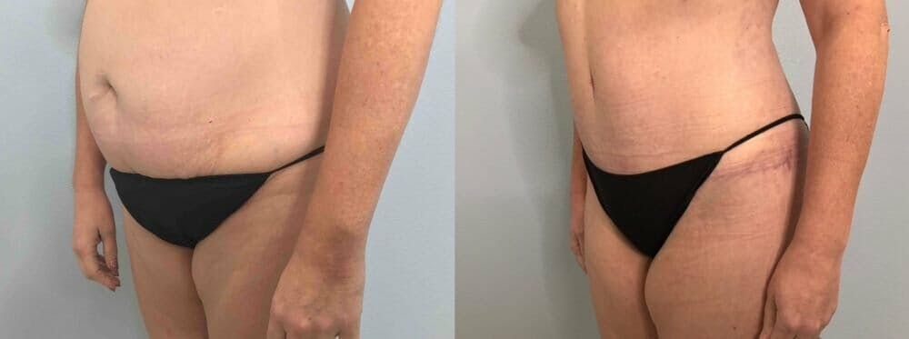 Tummy Tuck Gallery - Patient 47254000 - Image 3