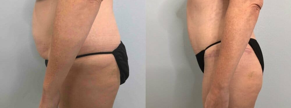 Tummy Tuck Gallery - Patient 47254000 - Image 4