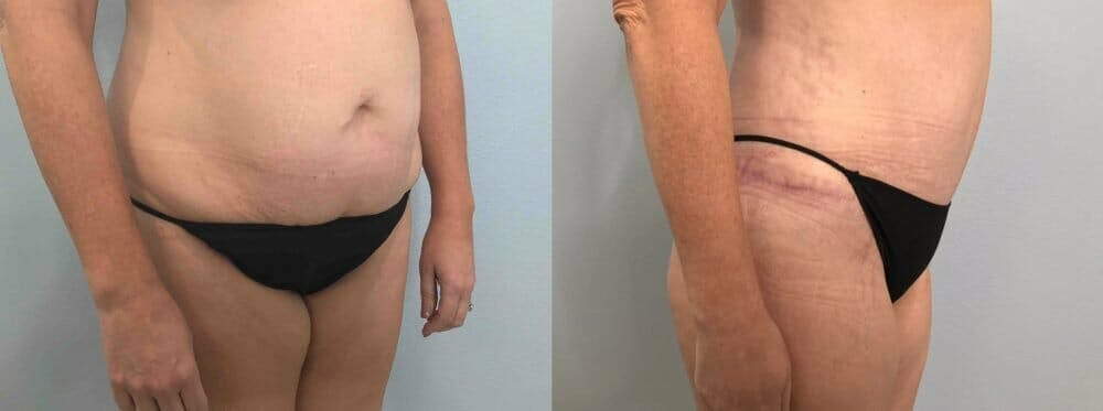 Tummy Tuck Gallery - Patient 47254000 - Image 5