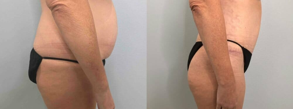Tummy Tuck Gallery - Patient 47254000 - Image 6