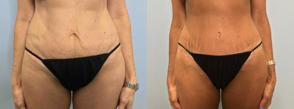 Tummy Tuck Gallery - Patient 47254006 - Image 1