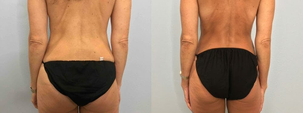 Tummy Tuck Gallery - Patient 47254006 - Image 2
