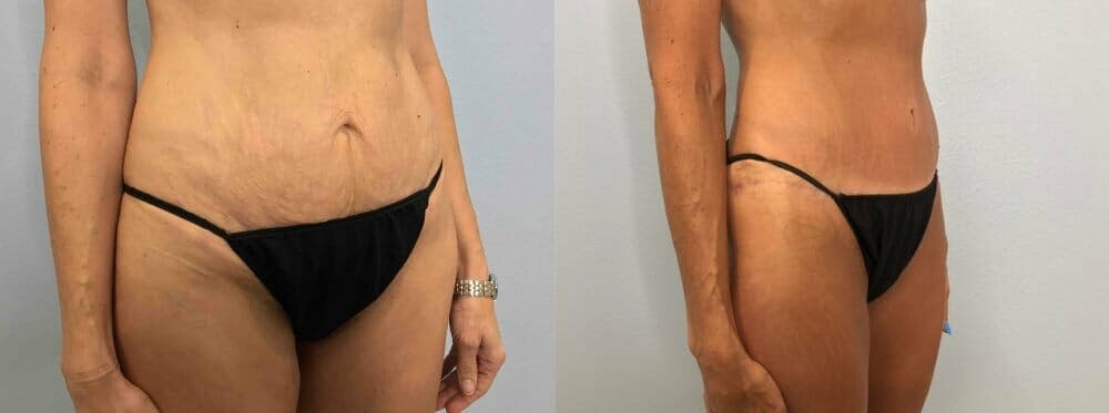 Tummy Tuck Gallery - Patient 47254006 - Image 3