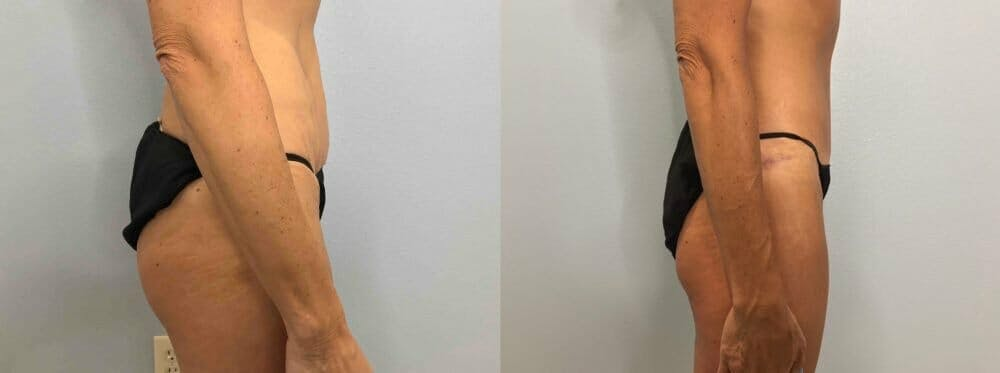 Tummy Tuck Gallery - Patient 47254006 - Image 4