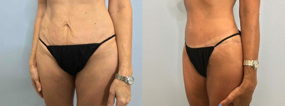 Tummy Tuck Gallery - Patient 47254006 - Image 5