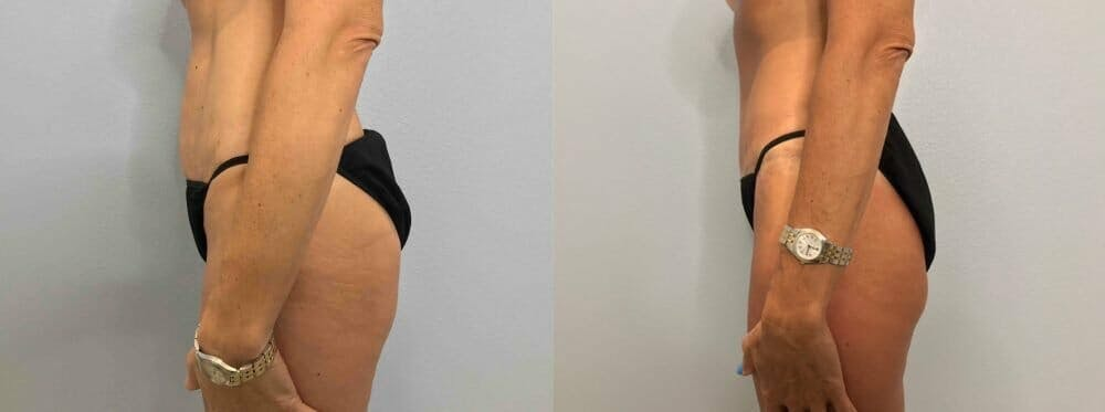 Tummy Tuck Gallery - Patient 47254006 - Image 6