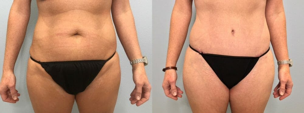 Tummy Tuck Gallery - Patient 47254019 - Image 1