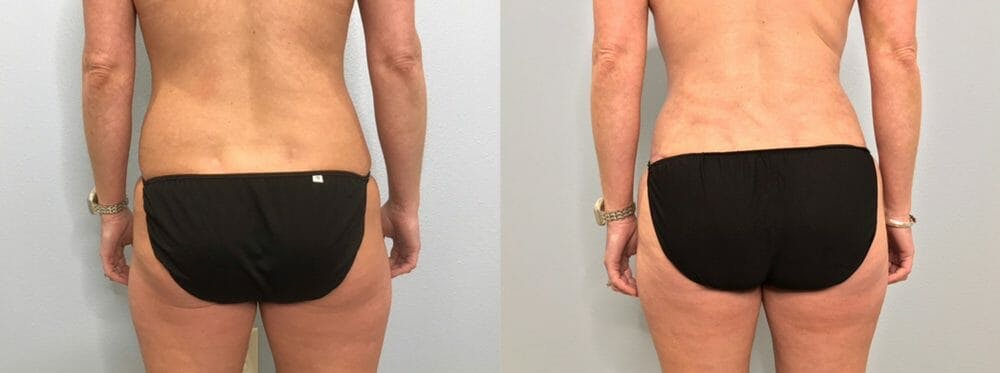 Tummy Tuck Gallery - Patient 47254019 - Image 2
