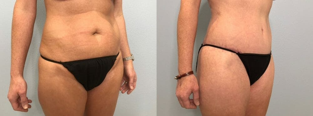 Tummy Tuck Gallery - Patient 47254019 - Image 3