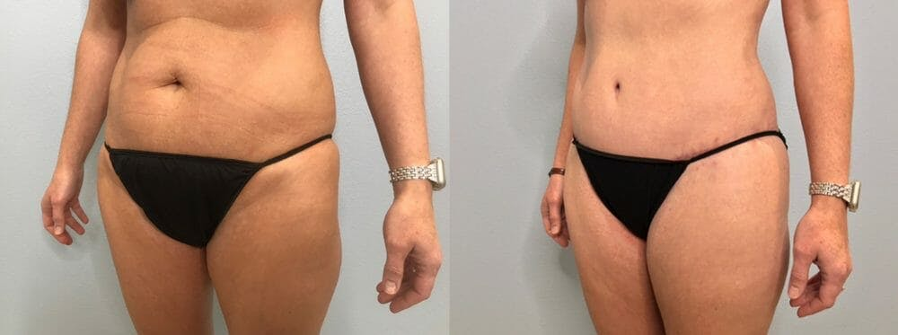 Tummy Tuck Gallery - Patient 47254019 - Image 5