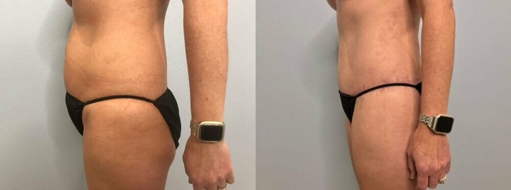 Tummy Tuck Gallery - Patient 47254019 - Image 6