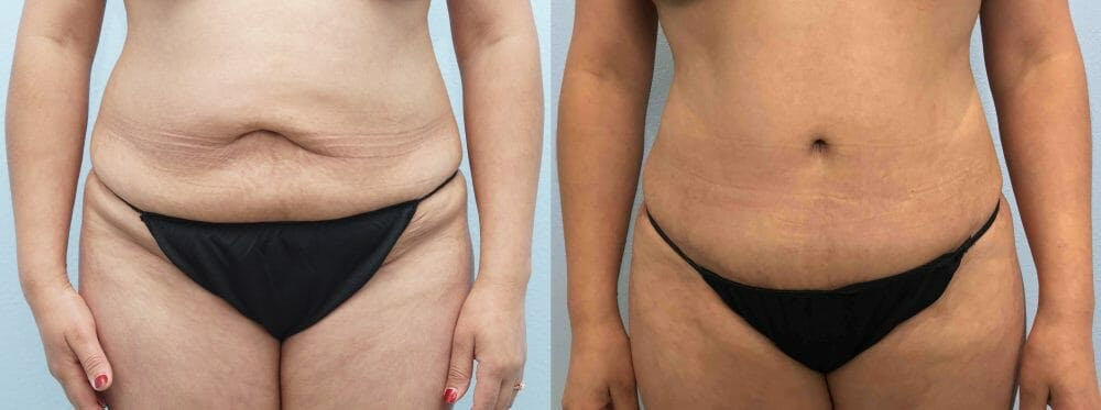 Tummy Tuck Gallery - Patient 47254032 - Image 1