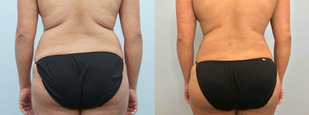 Tummy Tuck Gallery - Patient 47254032 - Image 2