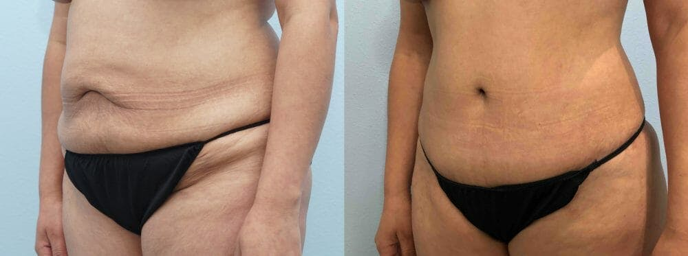 Tummy Tuck Gallery - Patient 47254032 - Image 3