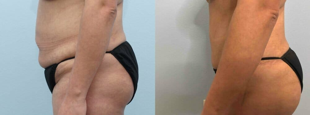 Tummy Tuck Gallery - Patient 47254032 - Image 4
