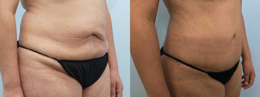 Tummy Tuck Gallery - Patient 47254032 - Image 5