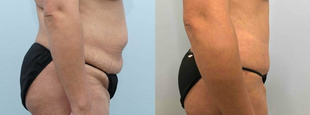Tummy Tuck Gallery - Patient 47254032 - Image 6