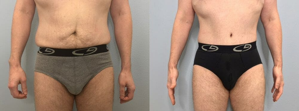 Tummy Tuck Gallery - Patient 47254038 - Image 1