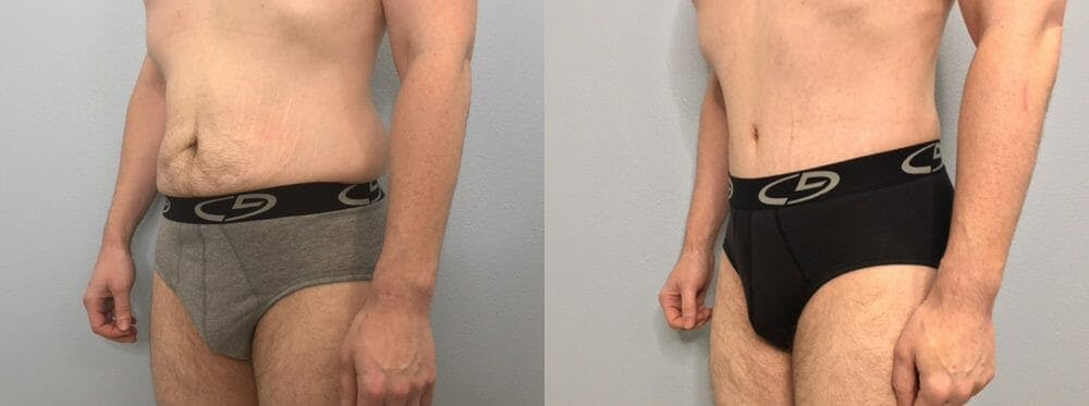 Tummy Tuck Gallery - Patient 53599468 - Image 2