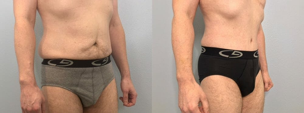 Tummy Tuck Gallery - Patient 53599468 - Image 4