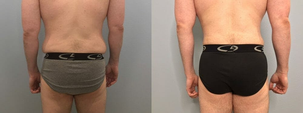 Tummy Tuck Gallery - Patient 53599468 - Image 6
