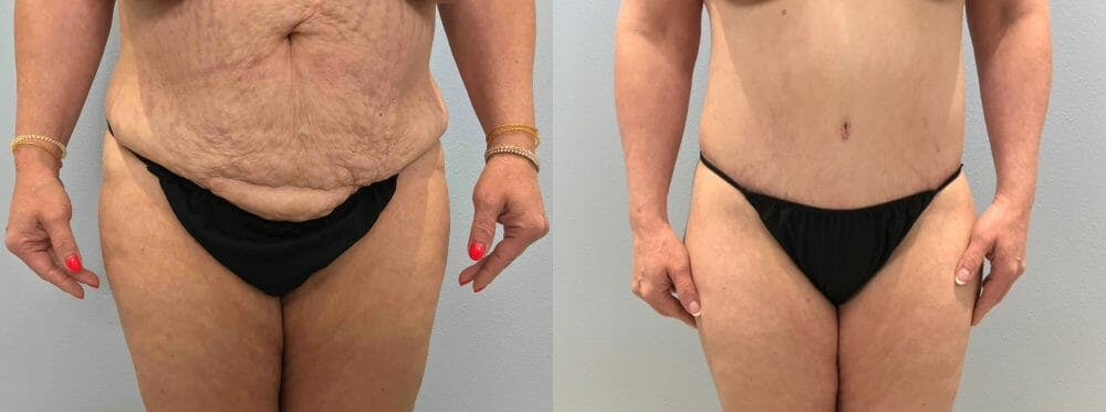 Tummy Tuck Gallery - Patient 47254039 - Image 1