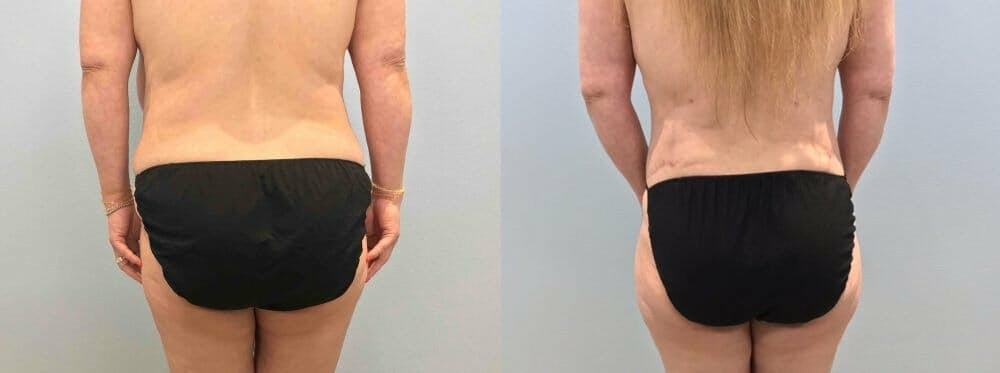 Tummy Tuck Gallery - Patient 47254039 - Image 2