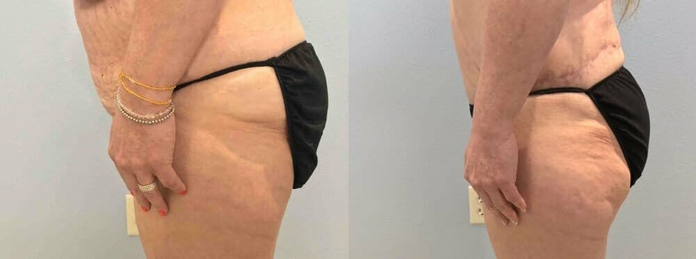 Tummy Tuck Gallery - Patient 47254039 - Image 4