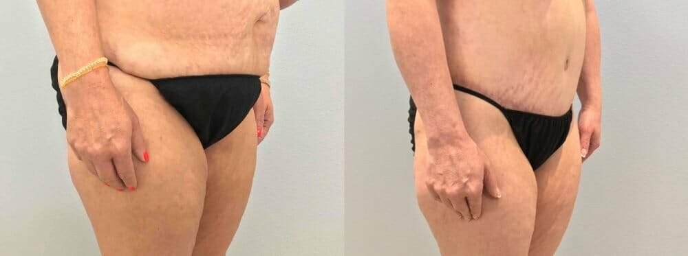 Tummy Tuck Gallery - Patient 47254039 - Image 5