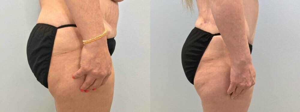 Tummy Tuck Gallery - Patient 47254039 - Image 6