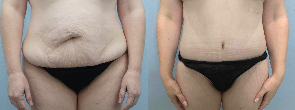 Tummy Tuck Gallery - Patient 47254049 - Image 1