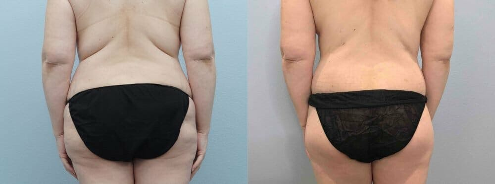 Tummy Tuck Gallery - Patient 47254049 - Image 2