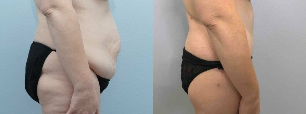 Tummy Tuck Gallery - Patient 47254049 - Image 4