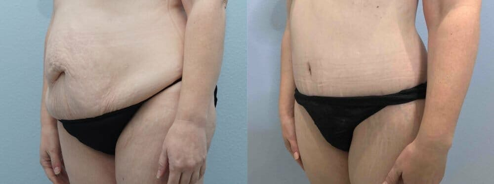 Tummy Tuck Gallery - Patient 47254049 - Image 5